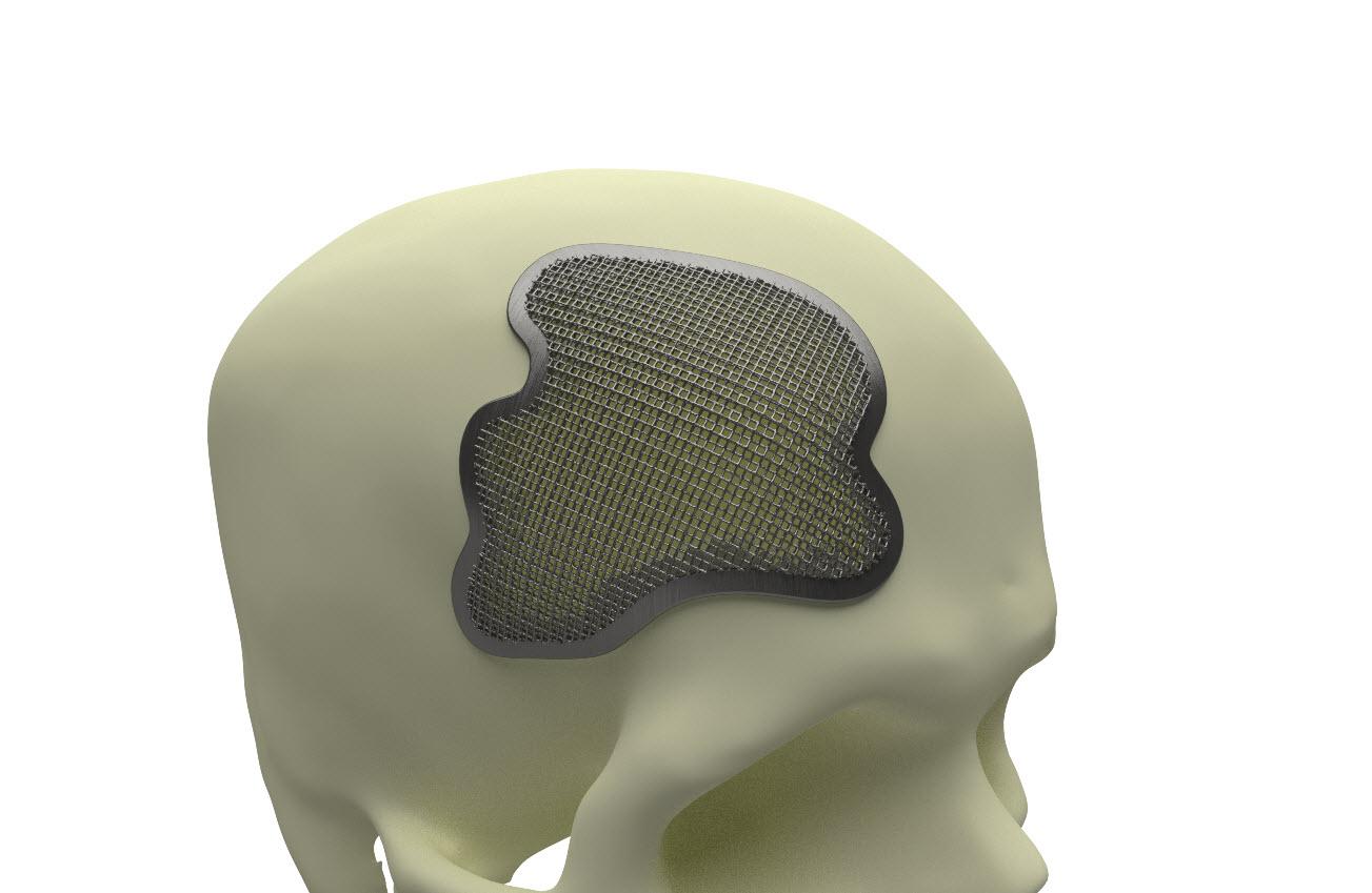 skull generative design lattice.jpg