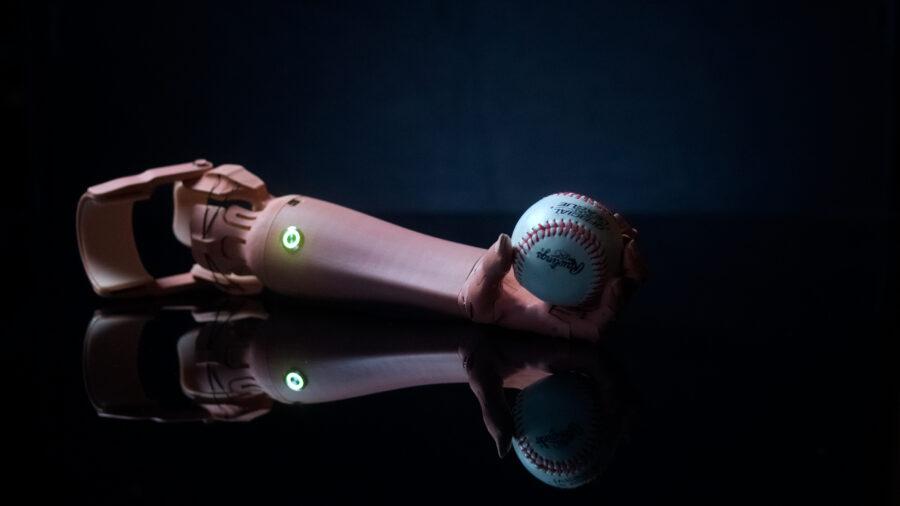 TrueLimb prosthetic