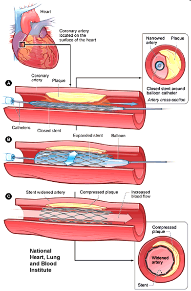 Stent2.png