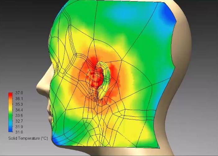 Transient simulation - Skin temperature