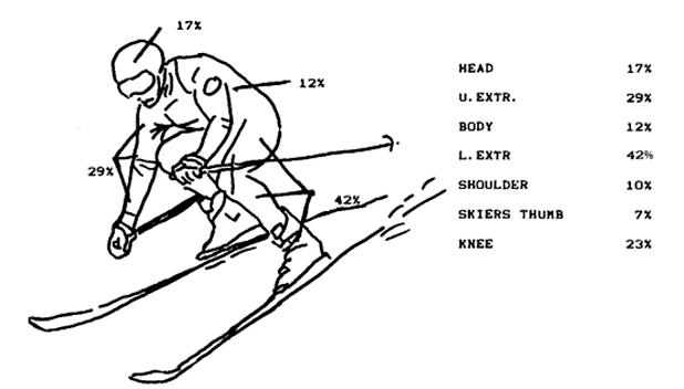 Typical ski injuries