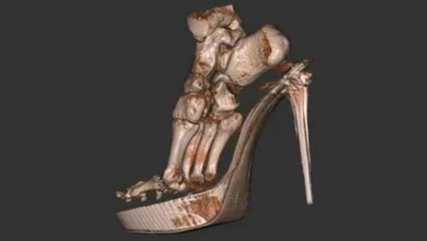 3d-foot-scan.jpg